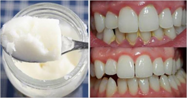 How To Make Homemade Toothpaste And